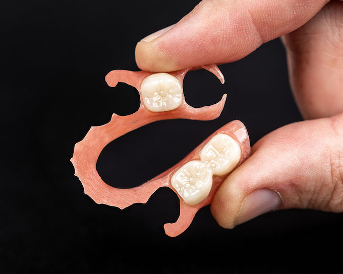 3D printed Valplast™ flexible partials